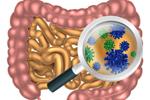 mikrobiom1l